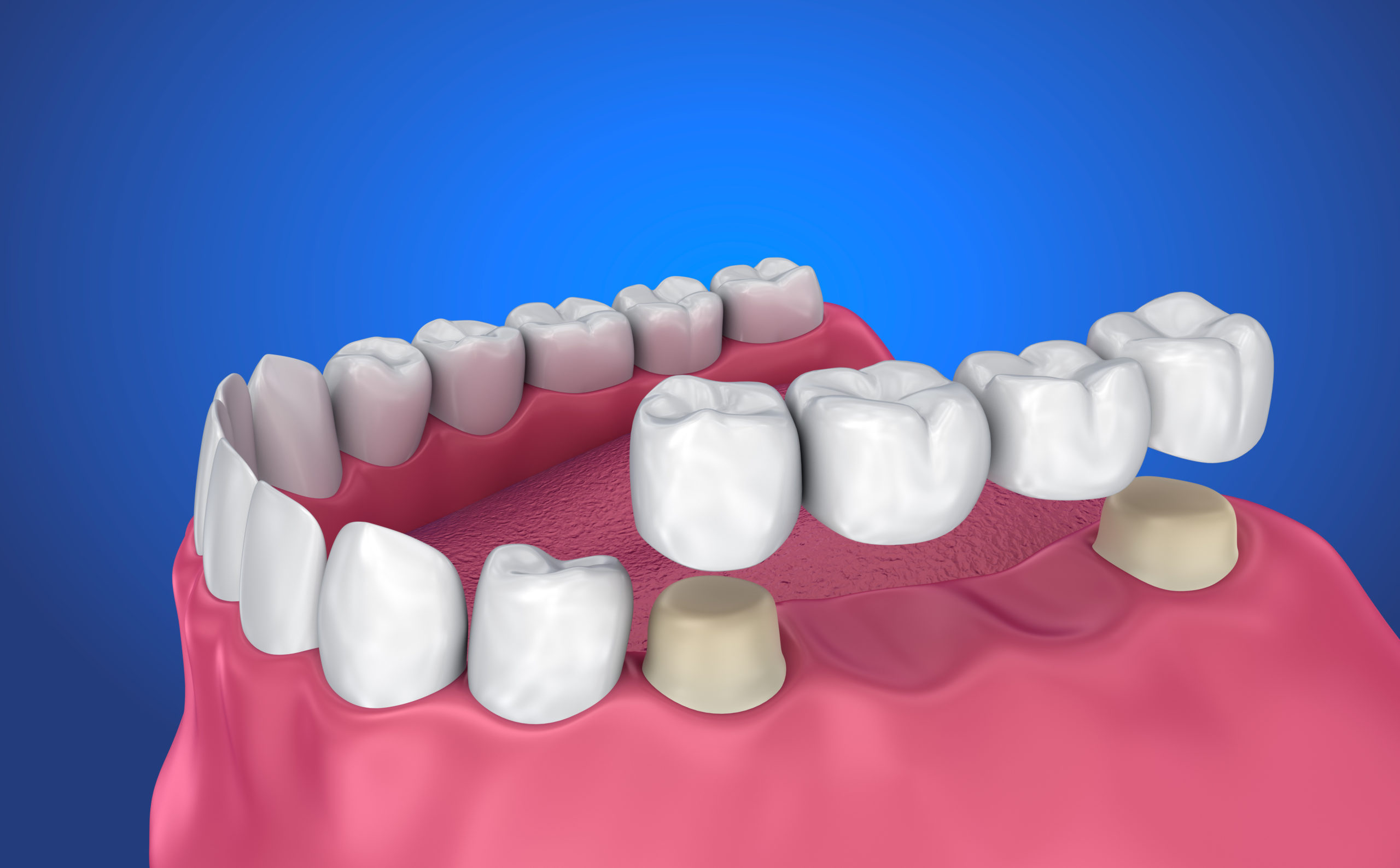 Dental Bridges - What Are They? k