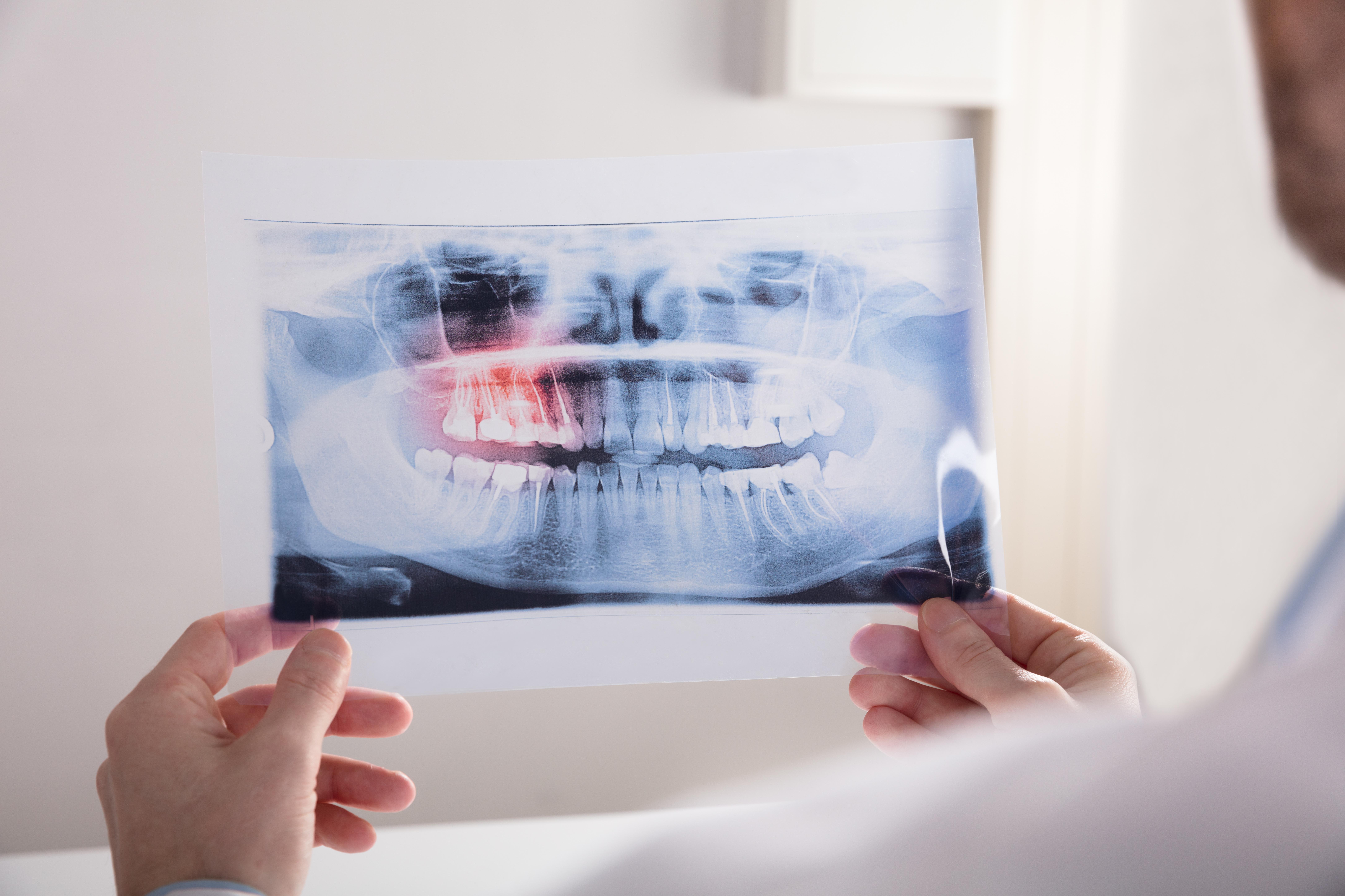 What Does 'Impacted Wisdom Teeth' Mean? kensington court clinic