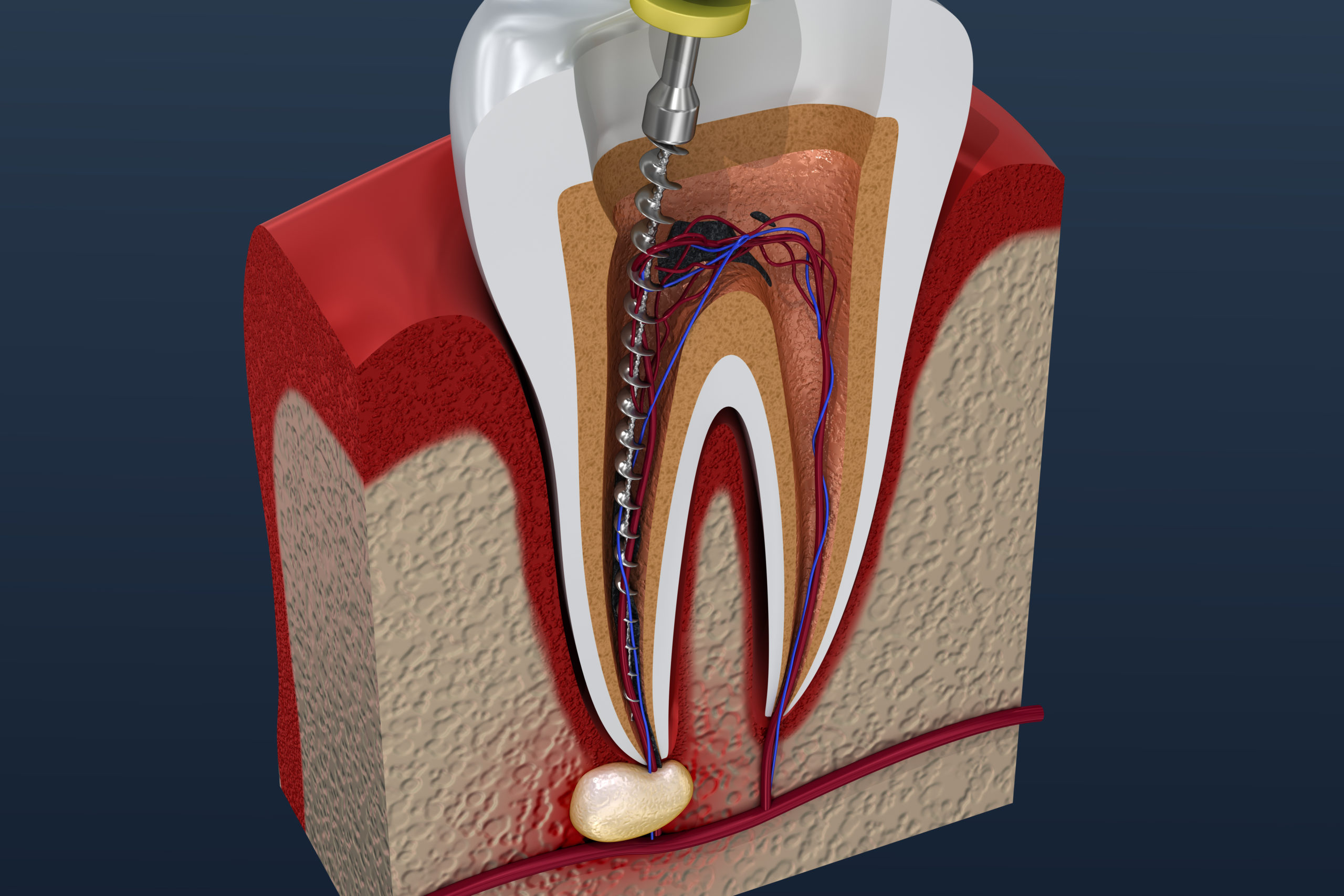 When is a root canal required? Kensington Court Clinic