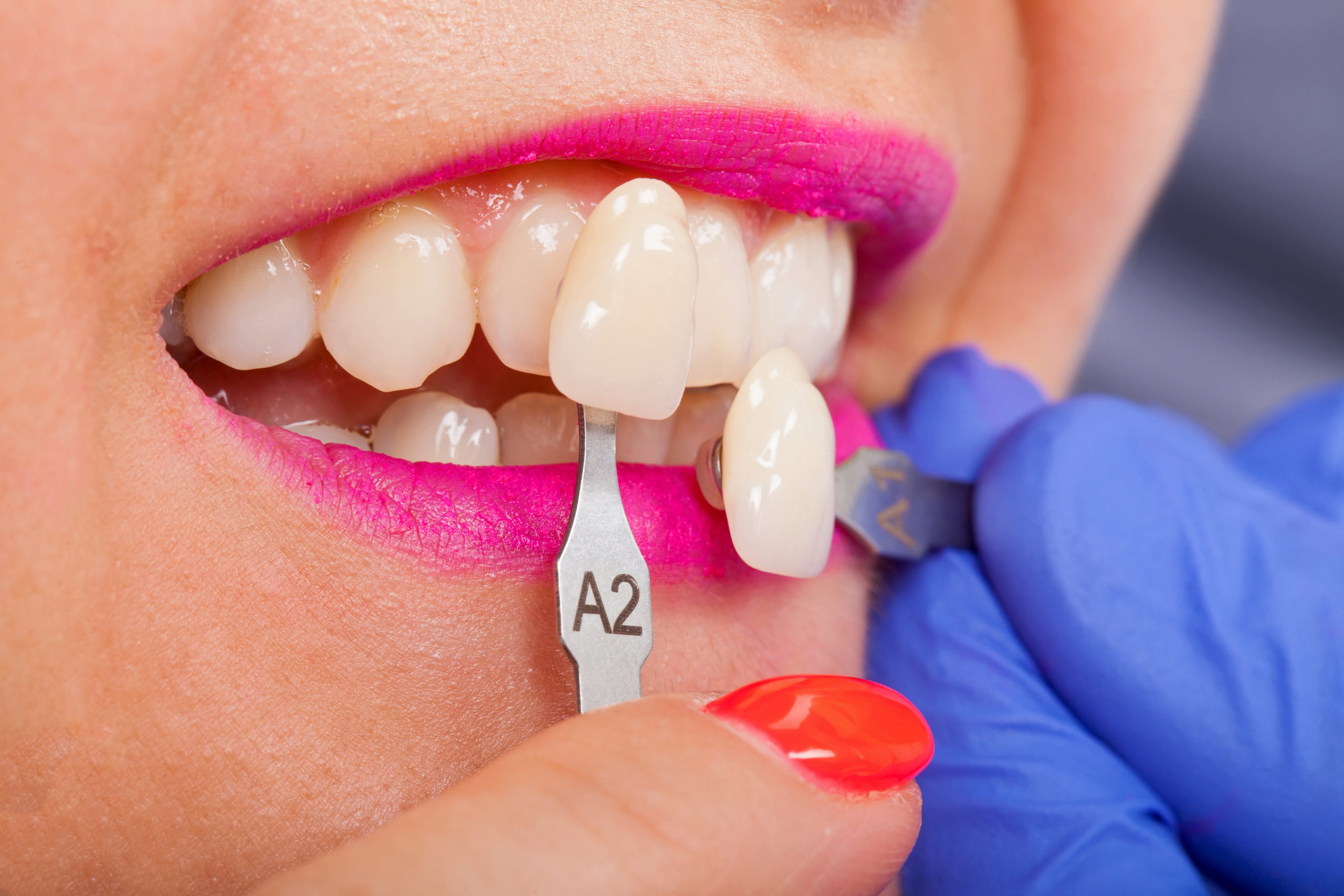 What Are Dental Veneers Used For? kensington court clinic