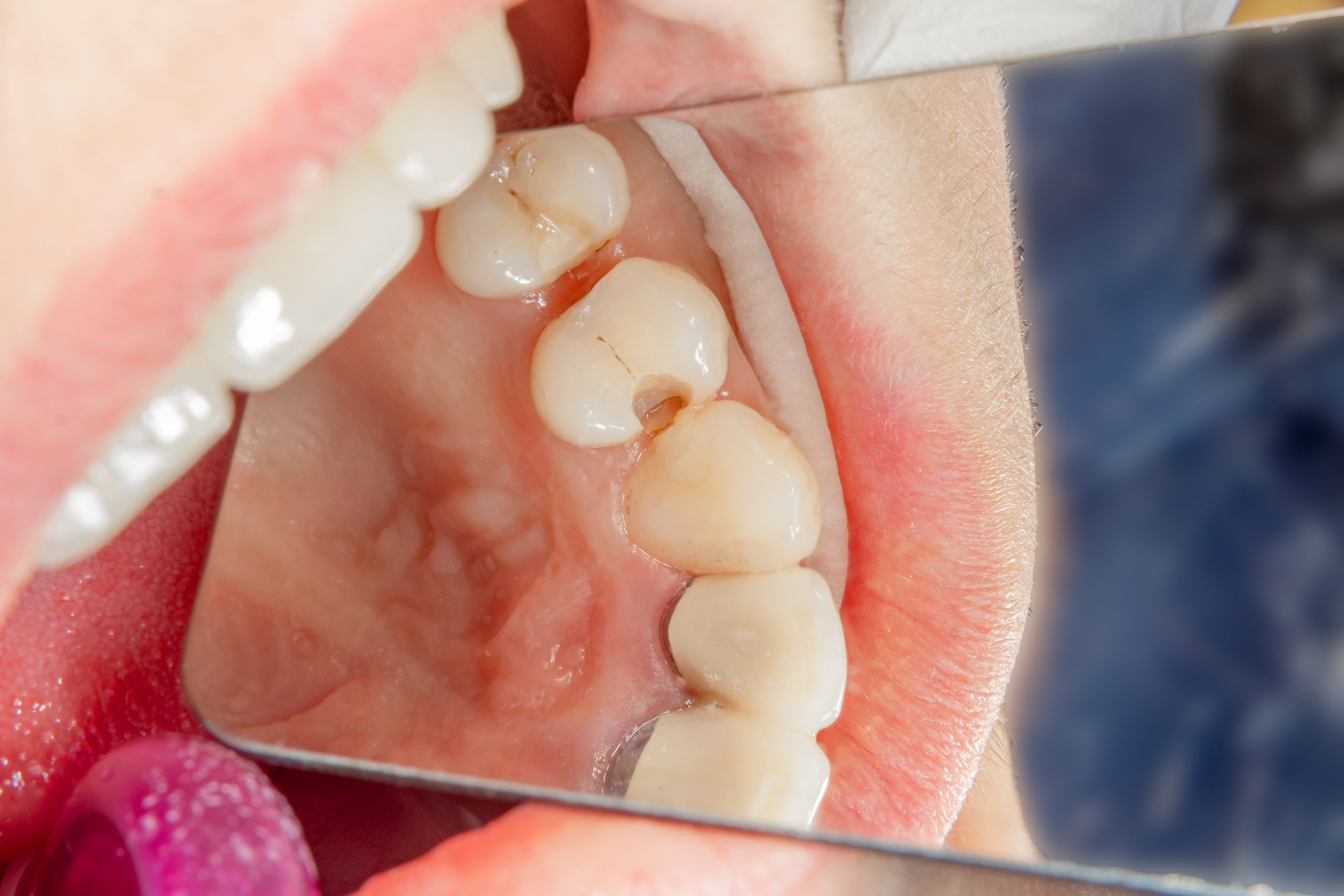 Can White Fillings Be Used In My Smile Makeover? kensington court clinic