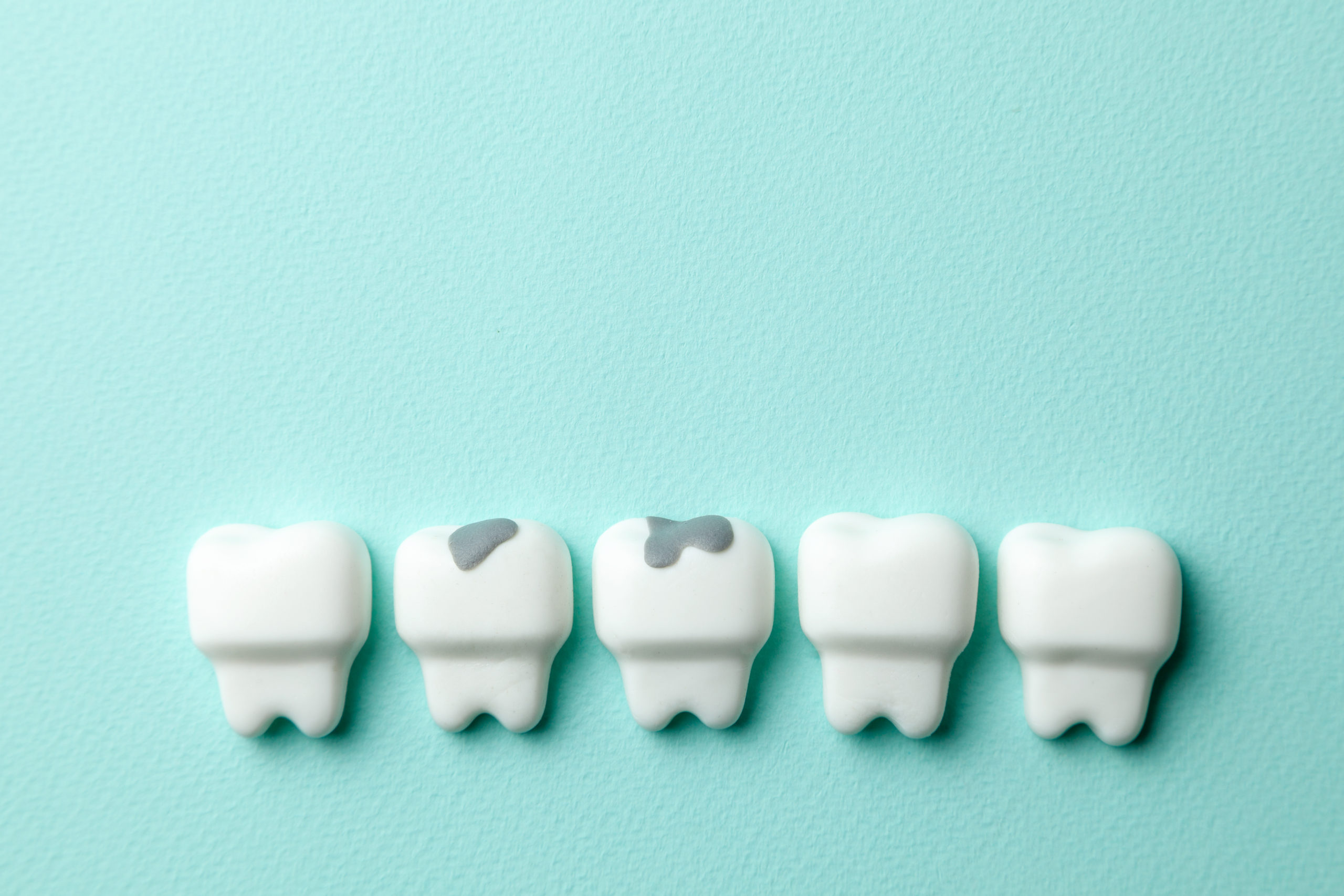 What are the Disadvantages Of Tooth-Coloured Fillings? kensington court clinic