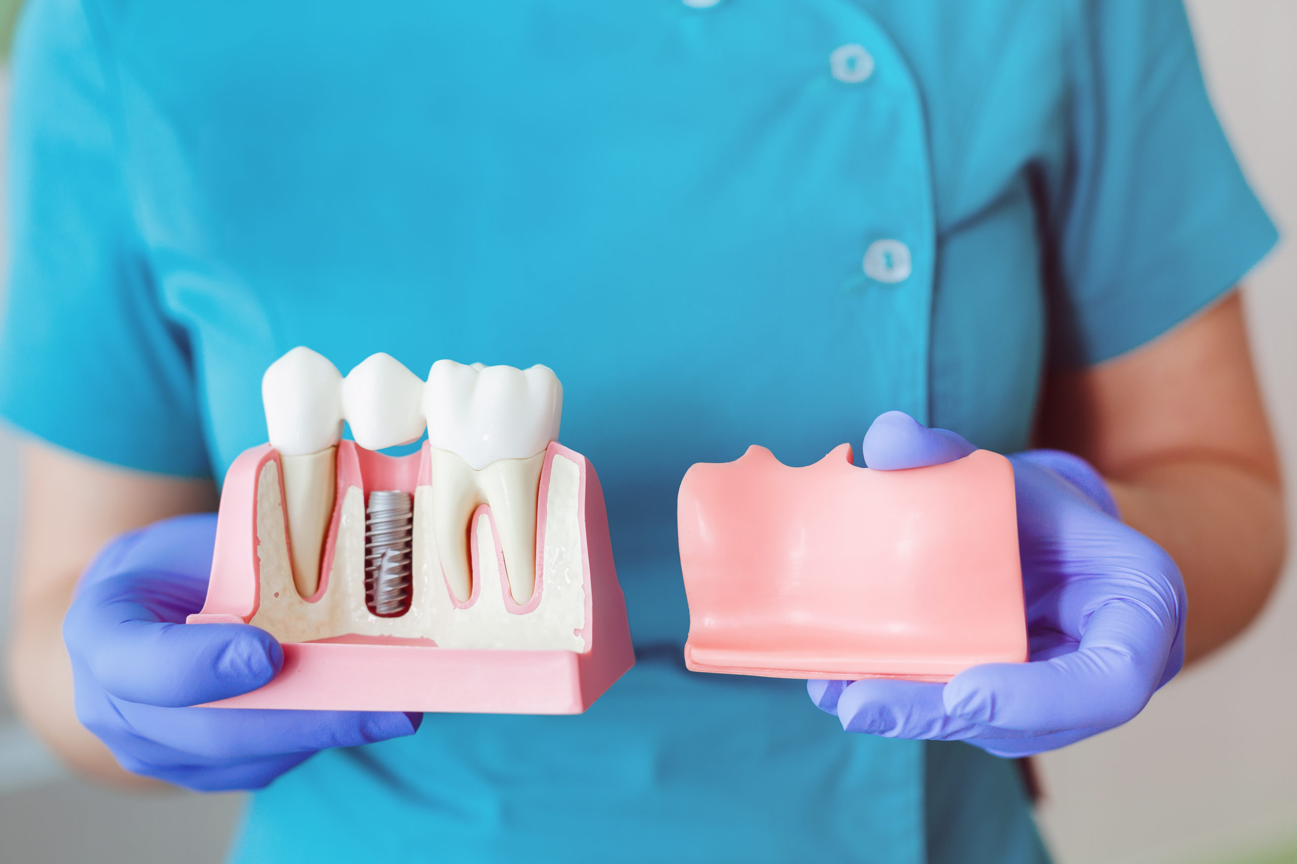 An Overview Of The Implant Process. kensington court clinic