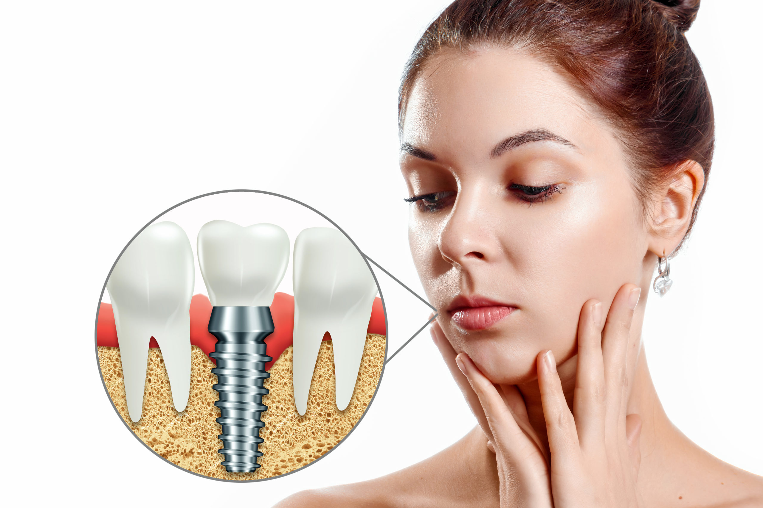 How Will I Know If I Am Suitable For Implants? kensington court clinic