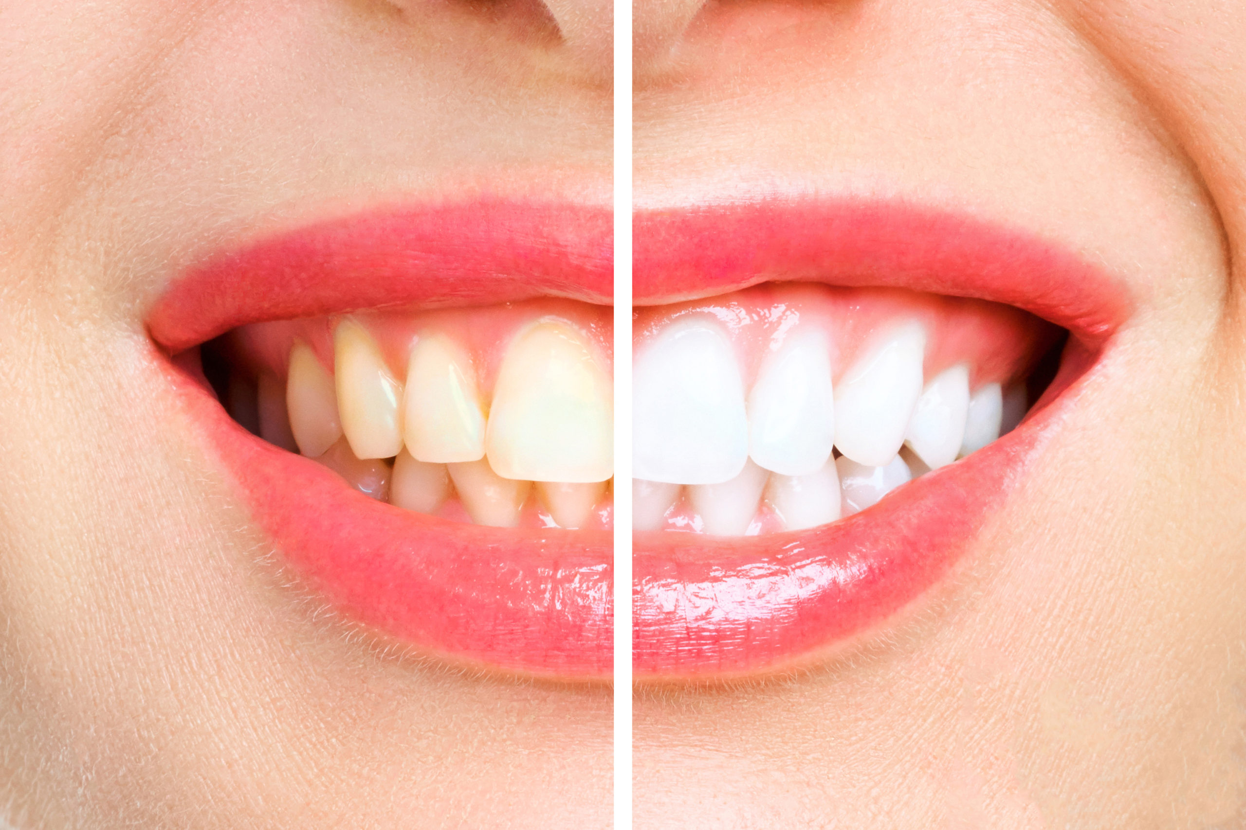 What Can Cause My Teeth To Stain? kensington court clinic